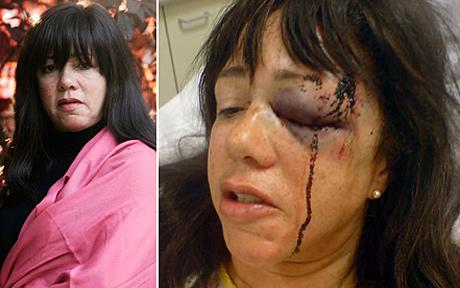Pamela Somerville, 59 was arrested and beaten up by police officer Mark Andrews for sleeping in her car in Wiltshire