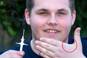 Innovative invention or tracking device? Boy inserts himself with RFID microchips