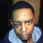 Hasidic Jewish men avoid jail after brutal beating of black man