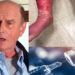 Virginia Man's Skin Peels Off Following Covid-19 Vaccine