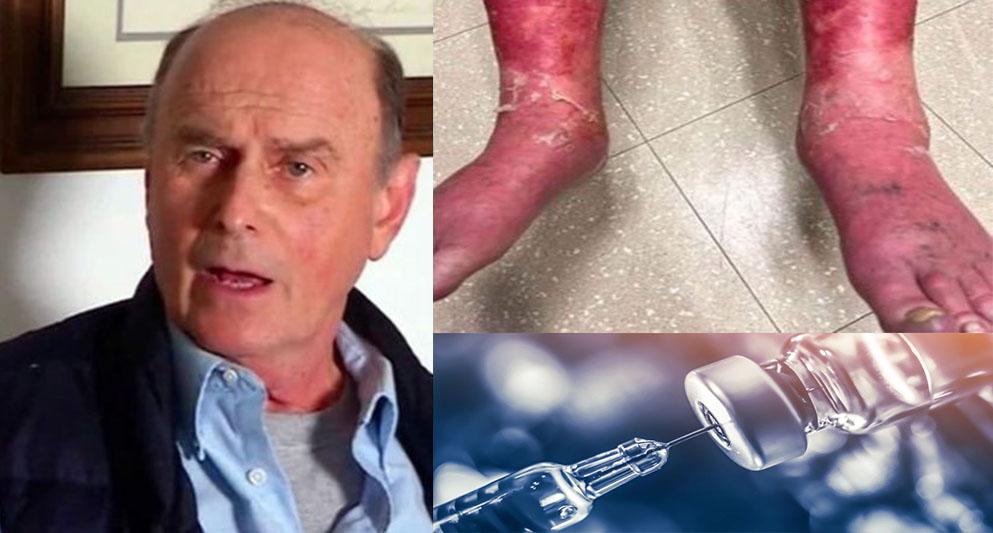 Richard Terrell astrazeneca rash