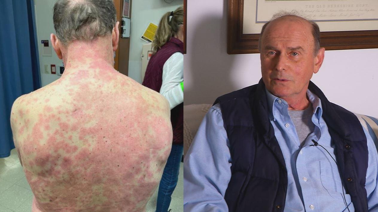 Richard Tarrell with rash all over his body